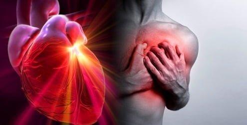 Ataque cardíaco signos