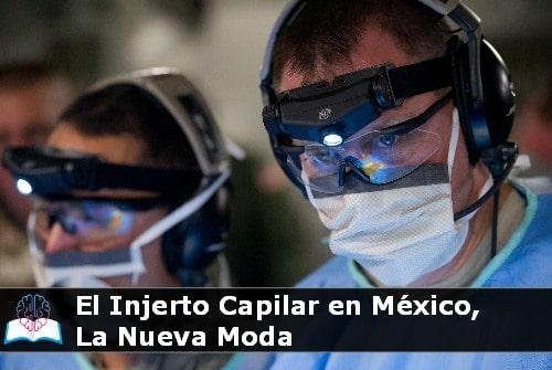 Injerto capilar en México, la nueva moda